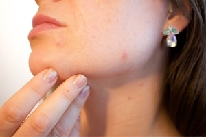 Acne Rosacea - Natural Solutions