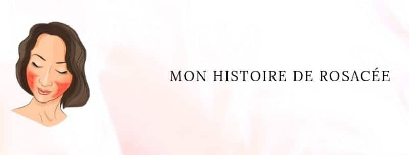 MON HISTOIRE DE ROSACÉE - BLOG - Wilma