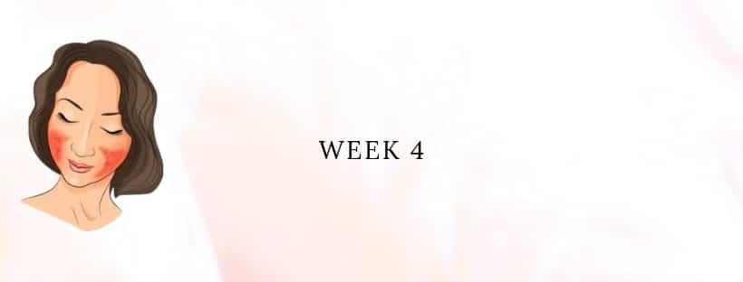 My Rosacea Story - Week 4 - Wilma