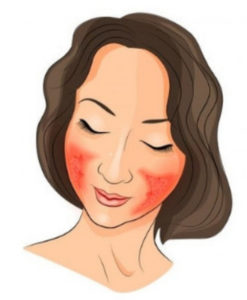 Rosacea | Redness
