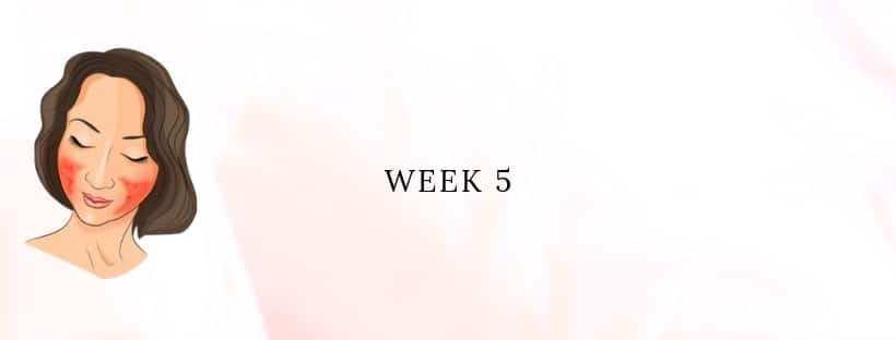 My Rosacea Story - Week 5 - Wilma